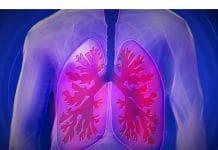beroepsziekten longen