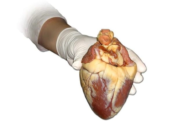 hart- en vaatziekten stress
