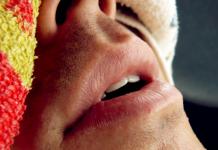 slapend dienstverband transitievergoeding